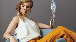 person with prosthetic arm